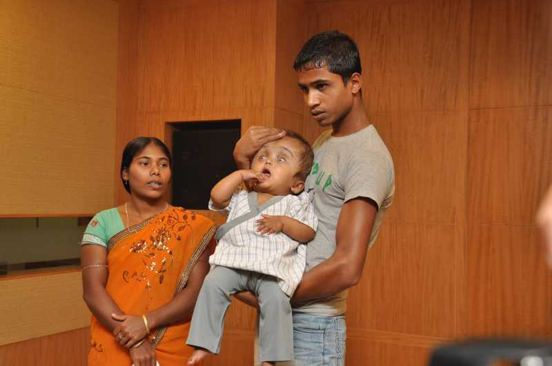 Roona who was suffering from hydrocephalus with her parents after second round of treatment where surgeons performed remodeling on the anterior part of her skull to further reduce and reshape her head which was three times larger than a normal child of her age at a private hospital in New Delhi