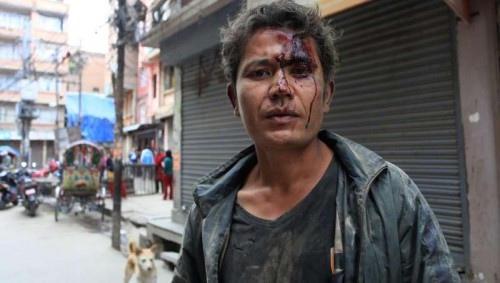 A man is injured after earthquake in Kathmandu, Nepal, April 25, 2015. More than 100 people are so far known to have been killed in a strong earthquake which hit large parts of Nepal on Saturday, including dozens in capital Kathmandu, sources here said.