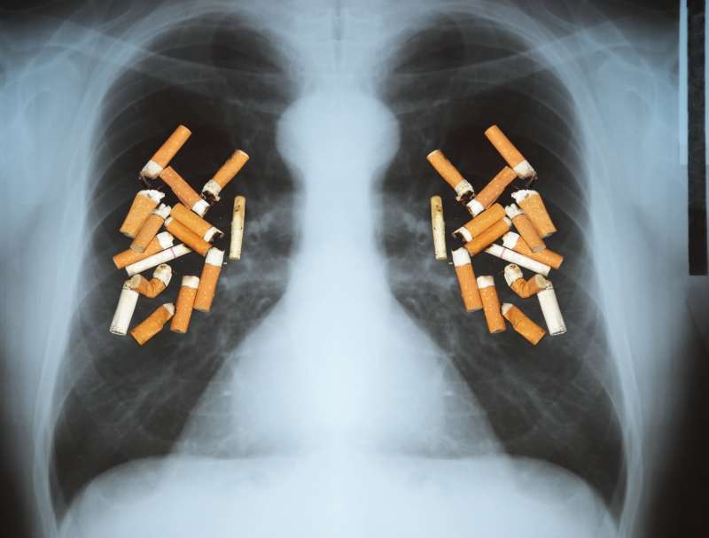 May 31 - World No Smoking Day