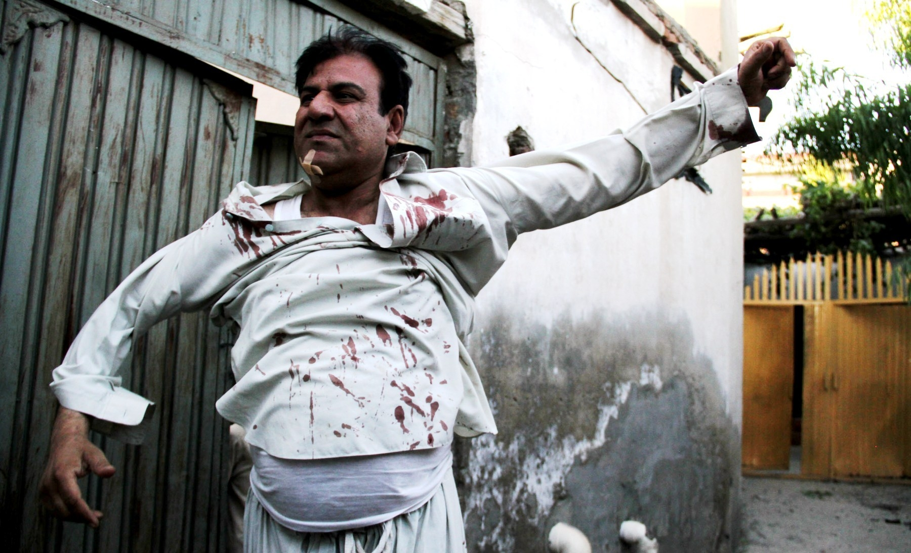 JALALABAD, June 1, 2015 (Xinhua) -- An injured man stands at the site of attack in Jalalabad city, capital of eastern Afghan province of Nangarhar, June 1, 2015. Five militants were killed in a six-hour-seige on a police station in Jalalabad city, capital of eastern Afghan province of Nangarhar by Taliban overnight Sunday, police said on Monday. (Xinhua/Sapay/IANS)