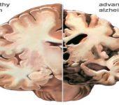 Blood Protein to stem Alzheimer's
