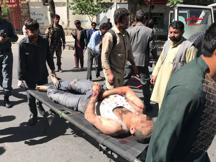 KABUL, May 31 (Xinhua) -- An injured man is being transferred to hospital in Kabul, Afghanistan, on May 31, 2017. A powerful blast rocked a diplomatic district in the central part of Afghanistan's capital of Kabul on Wednesday morning, leaving casualties and damage, sources and witnesses said. (Xinhua/Rahmat Alizadah/IANS) by .